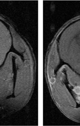 Pre and post T1-Contrast-enhanced MRI image of a spontaneous high-grade glioma in mice