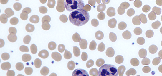 Microscopic image of neutrophils in blood